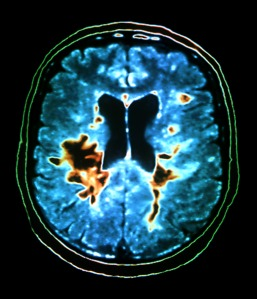 A coloured MRI scan of the brain of a patient suffering from MS. The black/orange lesions highlight the destruction of the myelin sheaths around the axon nerve fibres of the brain and spinal cord which cause MS. Lemtrada has been shown to slow down this damage to the brain tissue.
