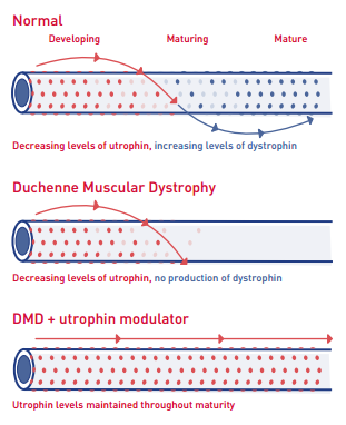 Duchenne Muscular Dystrophy Patients May Have Increased Risk of